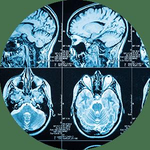Neuropsychology | PsyD at PHSU St. Louis