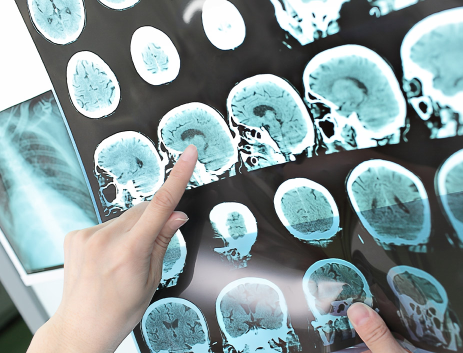 Neuropsychologist   PsyD Career Pathways Ponce Health Sciences St. Louis